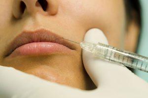 Lip Augmentation by Dr. Andreas Skarparis