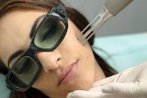 Laser Skin Resurfacing - Fractional Laser